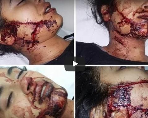 """إنـــزكـــان : بالفيديو .. """"20 غرزة جراحية"""" لإيقاف نزيف دماء بعد أن قطع جزار لسان فتاة و شرمل و جهها بسكين"""
