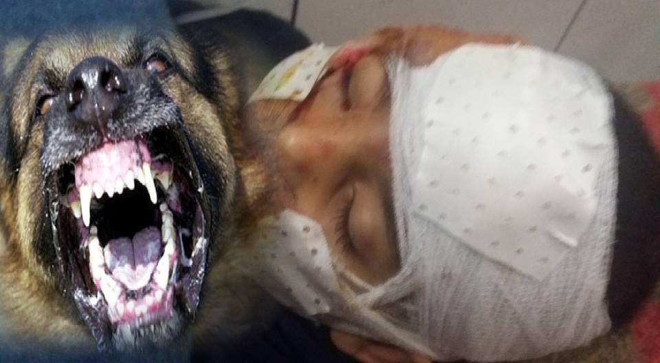 تيزنيت :كلب مسعور يُحوِّل حياة طفل إلى جحيم.. ومستشفيات سوس عاجزة عن إنقاذه