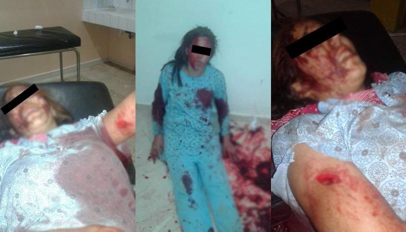 بالصور : شاب يعتدي على قاصر بعد رفضها الزواج منه