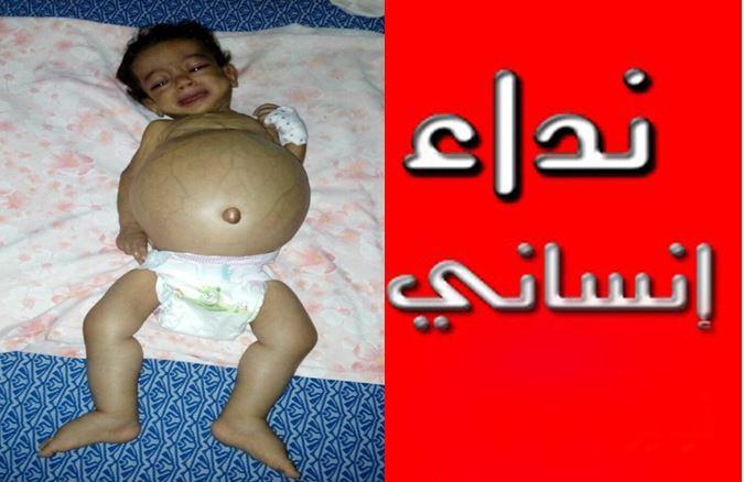 """تيزنيت : نداء إنساني لمساعدة الطفلة ' فاطمة الزهراء """" من بونعمان"""