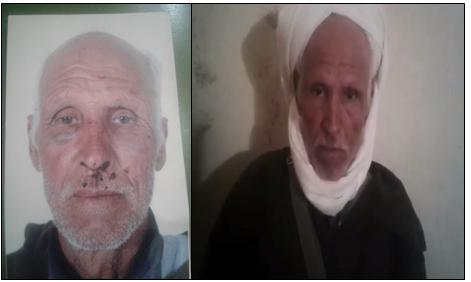 """سيدي إفني :ستيني ضحية اعتداء شنيع بـ"""" سبت النابور """" يطالب بإنصافه ( فيديو )"""