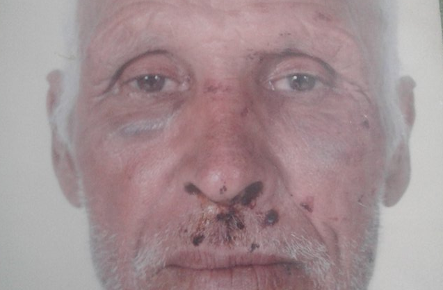 """سيدي إفني : ستيني ضحية اعتداء شنيع بـ"""" سبت النابور """" يُطالب بإنصافه"""