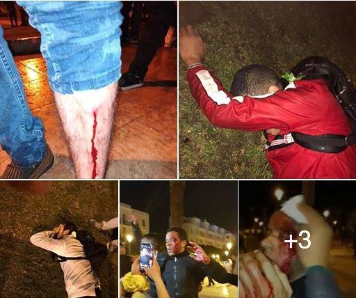 دماء وإصابات ورشاشات ماء.. تدخل أمني عنيف ضد أساتذة التعاقد في منتصف الليل